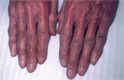 Carcinoid syndrome sympton of pellagra, a nutritional deficiency that causes skin rash